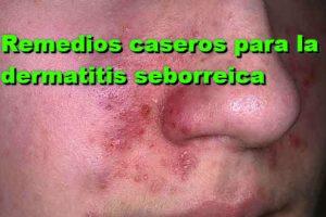 Las medicinas contra la psoriasis la lista