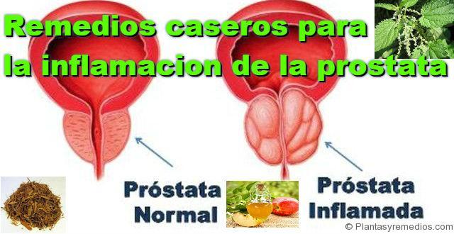 11 Remedios caseros para la inflamación de la prostata