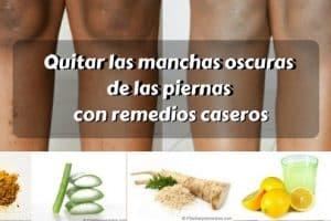 Quitar las manchas oscuras de las piernas con remedios caseros