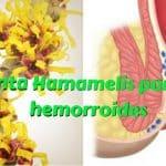 Hamamelis para las hemorroides