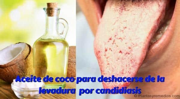 Hongo candida albicans aceite de coco